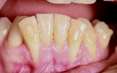 La enfermedad de las encías (piorrea) se llama: Enfermedad periodontal