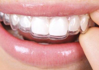 articulación-mandibular-retenedor-dental