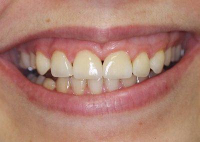 carillas-dentales-despues