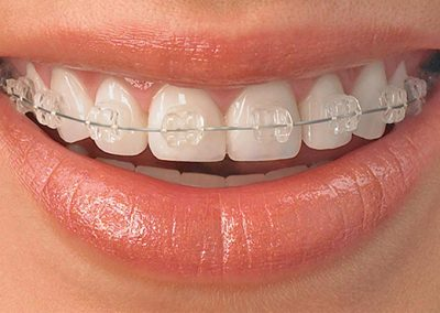 ortodoncia-aparato