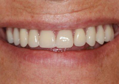 implantes-clinica-dental-tarragona-altafulla