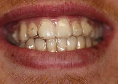ortodoncia-invisible-clinica-dental-altafulla